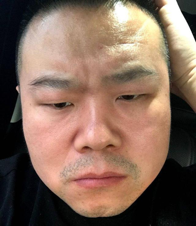 岳云鹏农村娃变身大明星,父亲去世时登台表演,郭德纲:戏比天大